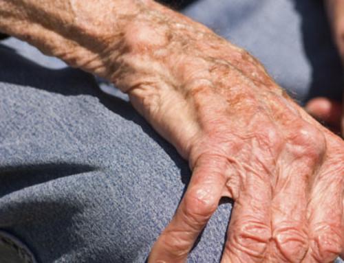Os Tremores e a Doença de Parkinson